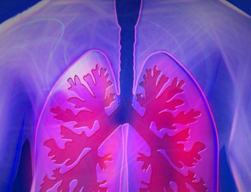 Tumore del polmone, quando la sola immunoterapia in prima linea non basta